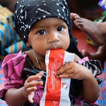 Bebé comiendo plumpy nut (alimento terapéutico)